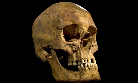 Richard III's skull (from: guardian.co.uk)